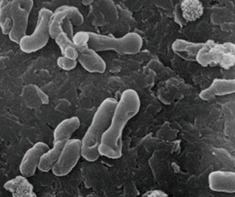 水質浄化バクテリア